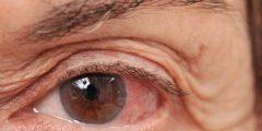أبتودروب Optodrop لعلاج أمراض العين