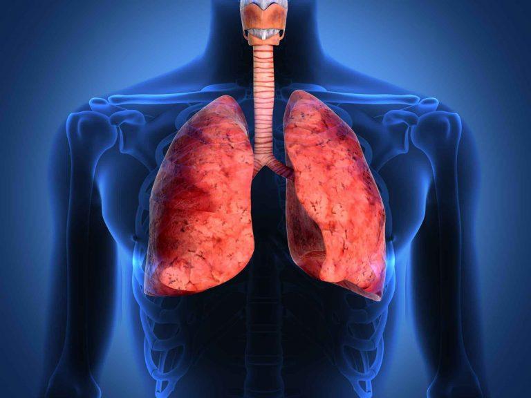 تعريف سرطان الرئة وأعراضه وطرق العلاج وكيفية الوقاية منه