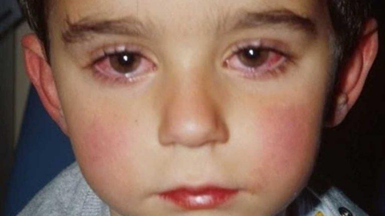 احمرار العين عند الأطفال.. تعرف على كل ما يخص احمرار العين عند الطفل