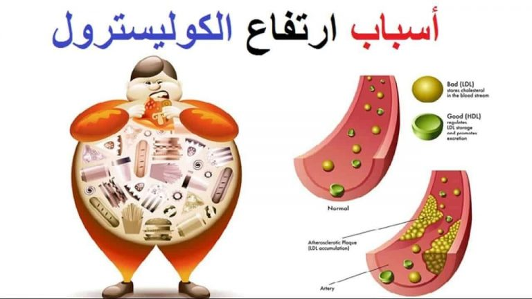 ما هو علاج الكولسترول ..