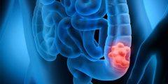 تجربتي مع سرطان القولون