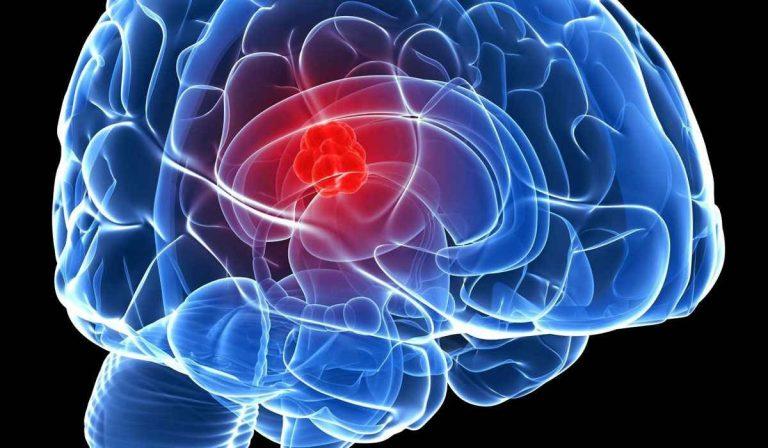 سرطان الدماغ .. الأسباب والأعراض والتطورات التي تطرأ على مريض سرطان الدماغ