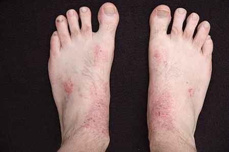 علاج حساسية الساقين..أعراض حساسية الساقين وطرق الوقاية منها وطرق علاجها