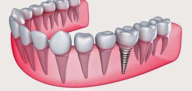 عدد جذور الأسنان ..  –