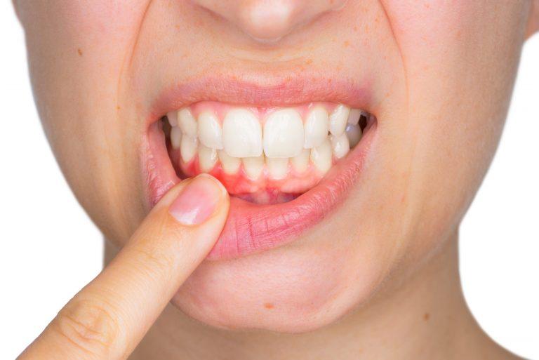 علاج التهاب اللثة والاسنان باستخدام وصفات واعشاب الطبيعية والعلاج الدوائي