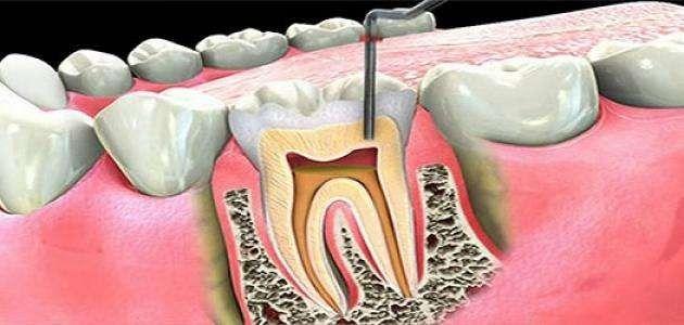 ماهو علاج الم الاسنان ..
