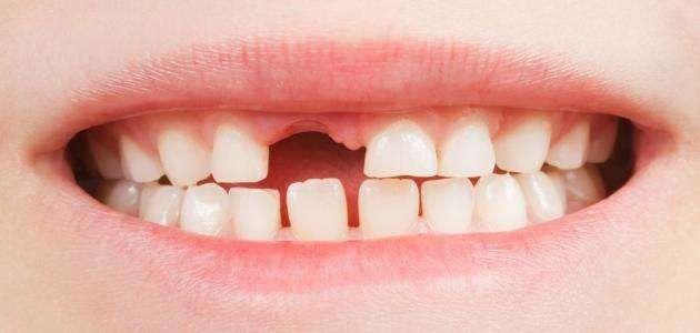 كم عدد الأسنان اللبنية – تعرف على عدد مراحل ظهورها وكيفية العناية بها