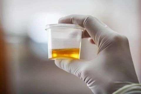 ما هو علاج التهاب البول