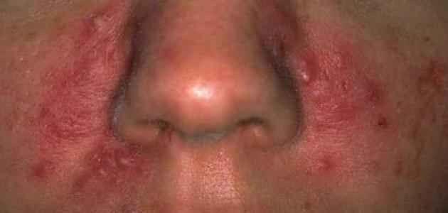 علاج حساسية الوجه .. 10 نصائح للتعرف على كيفية التعامل معها و6 طرق لعلاج حساسية الوجه .
