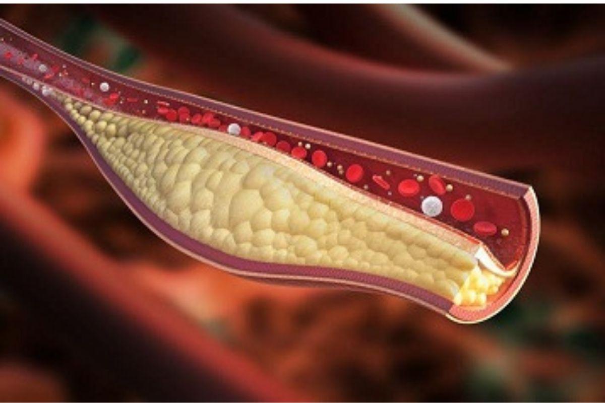 هل ارتفاع الكولسترول يسبب خفقان القلب؟