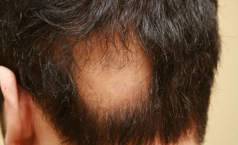 هل مرض الثعلبة معدي ؟