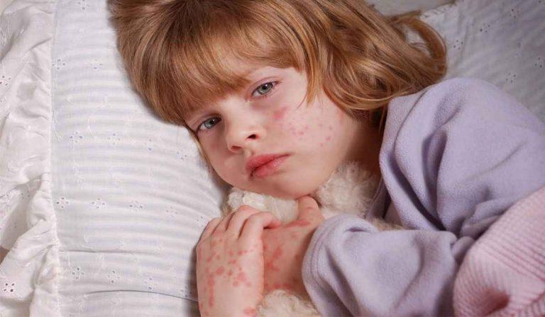علاج حساسية الجلد عند الاطفال .. اليك 8 طرق لعلاج الحساسية وماهي الاعراض