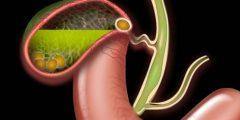 هل مرض التهاب المرارة قد يؤدي إلى الوفاة