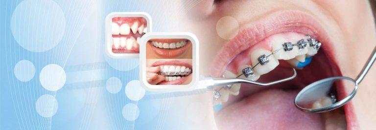 معلومات عن تخصص صحة الفم والاسنان … تعرف على التخصصات الفرعية والمستقبل
