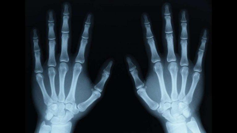 معلومات عن تخصص الاشعه …. تعرف على تاريخ الأشعة وطرق تشخيص المرض قديما