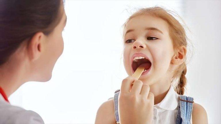 ما هو علاج التهاب اللوزتين
