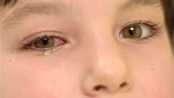 الرمد عند الاطفال .. تعرف على أسباب الإصابة بالرمد وطرق العلاج للأطفال ..