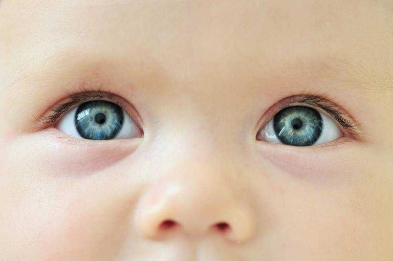 انحراف النظر عند الاطفال .. معلومات عن انحراف النظر عند الاطفال ..