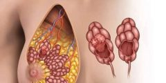 أعراض ورم الثدي الحميد