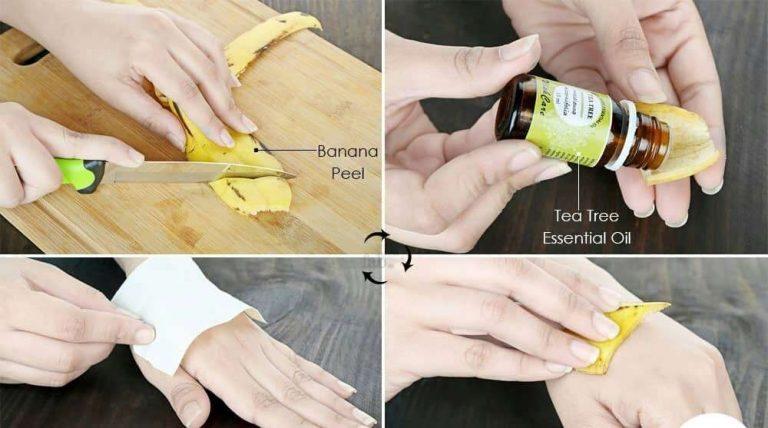 فوائد قشر الموز للثاليل