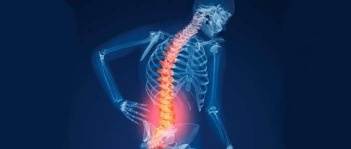 تخصص العظام