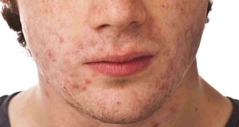 العناية بالبشرة الدهنية للرجال… طُرق ونصائح للعناية ببشرة الرجال الدهنية