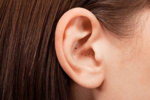 الحبوب السوداء في الأذن .. وعلاجها