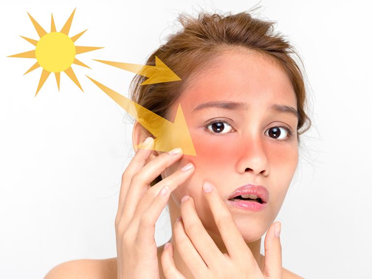 حساسية الجلد في الصيف … تعرف على أنواع حساسية الجلد اوطرق العلاج