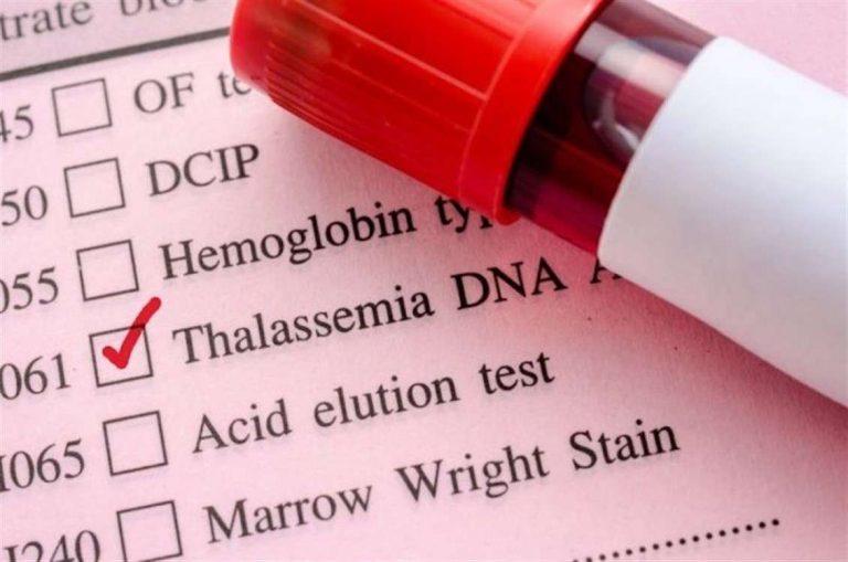 تعرف معنا على أسباب ومضاعفات وعلاج مرض الثلاسيميا /  بحر المعرفة