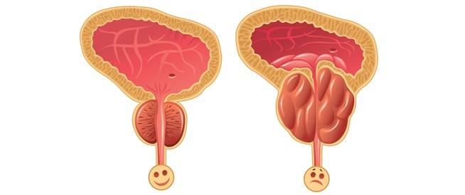 بروستا Prosta علاج تضخم البروستاتا الحميد